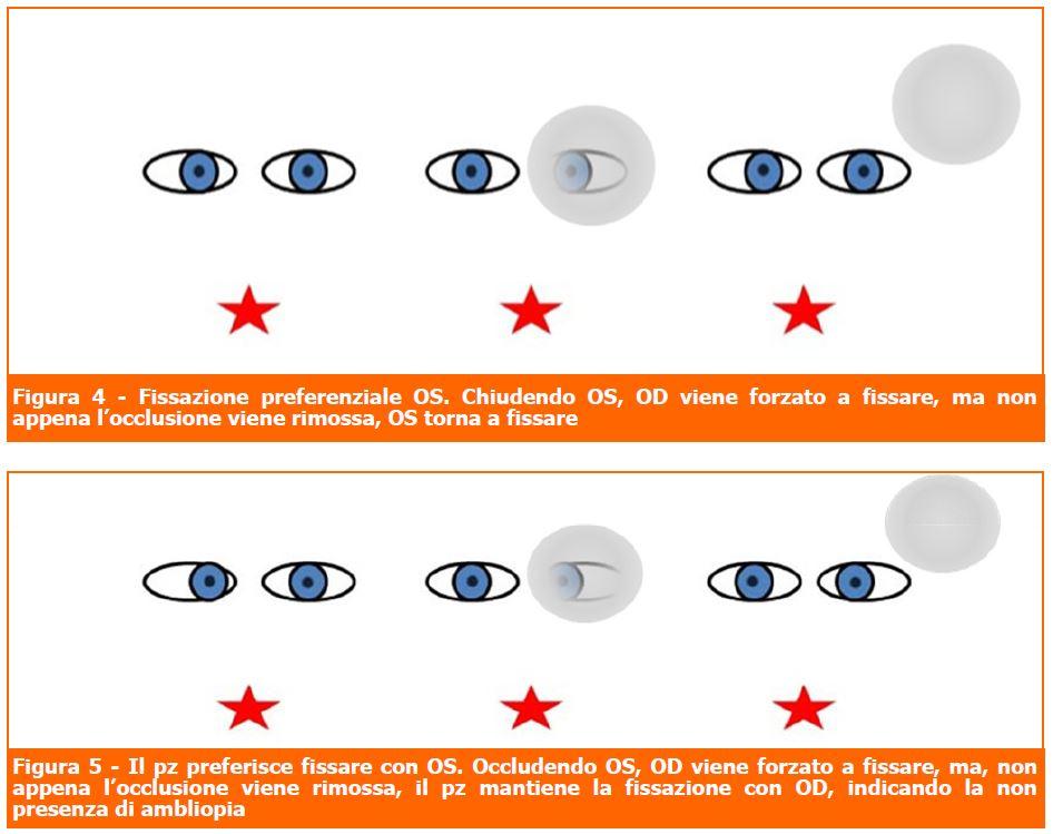 Diagnosi ambliopia: la fissazione