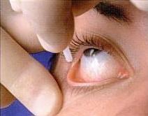 L'anestesia topica consiste nell'instillazione di gocce di anestetici locali sulla cornea