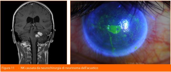 Cheratopatia-neurochirurgia-neurinoma dell'acustico-Professione Oculista