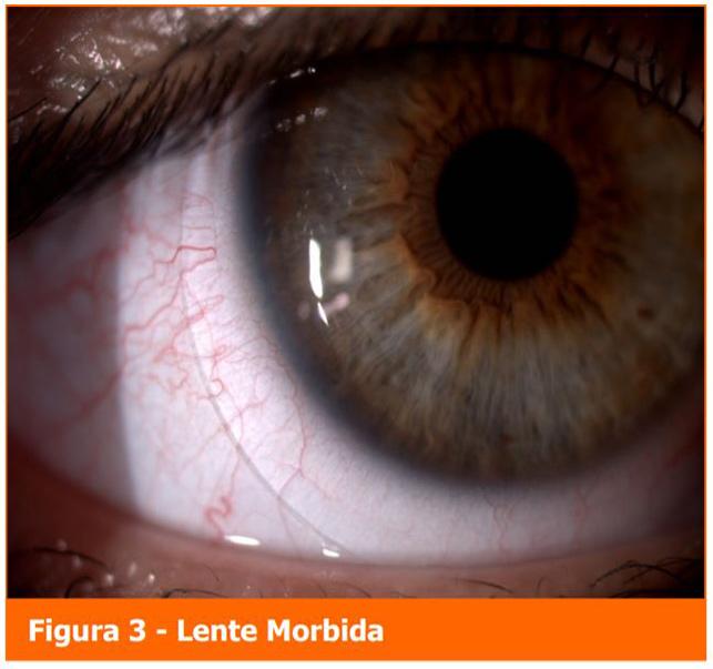 Lente Morbida - Professione Oculista