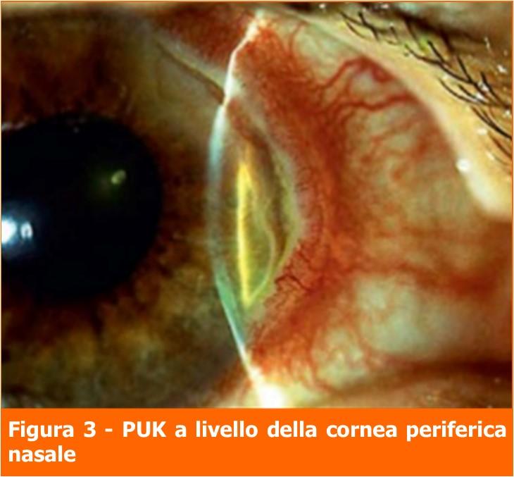 PUK-cornea periferica nasale-professione oculista-MEI